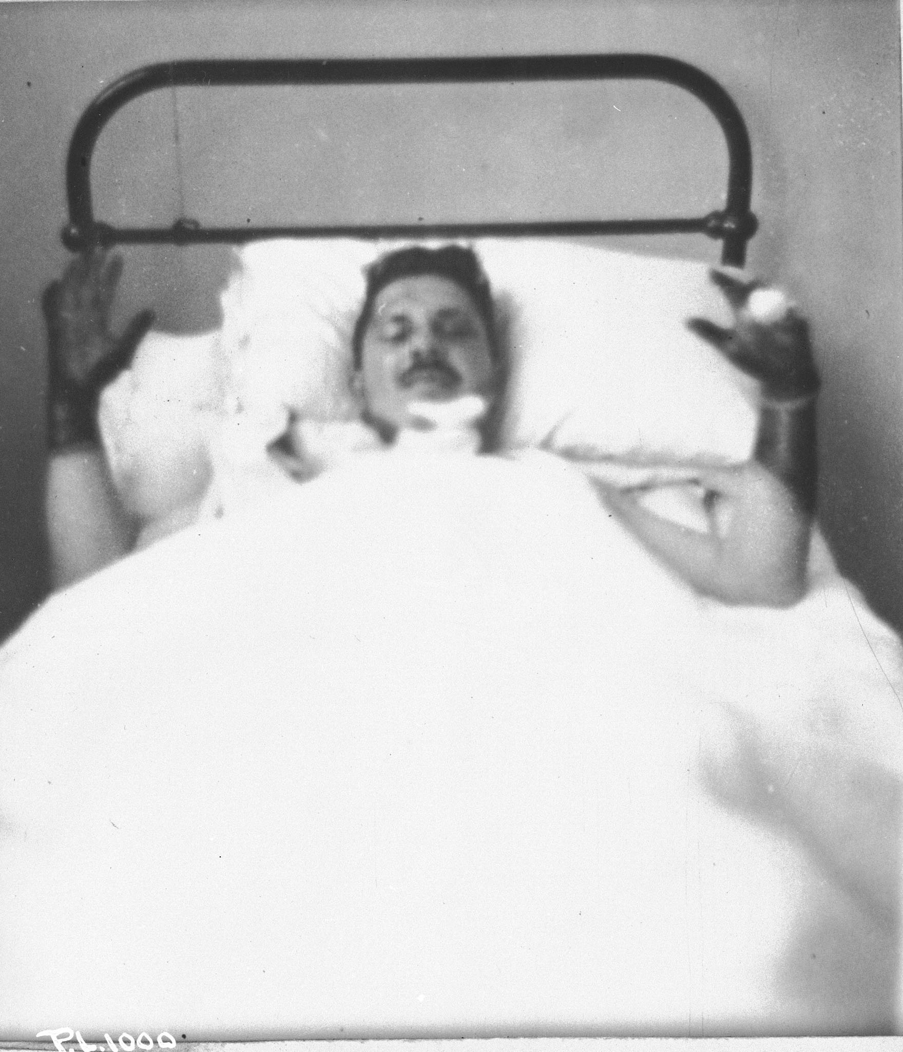 In late 1940 in a hospital in England, Flight Lieutenant Jean-Paul Desloges recuperates from burns he received on August 31, 1940, as he struggled to exit his burning aircraft after it was hit by a cannon shell during the interception of a large body of German bombers escorted by fighters over the south coast of England. PHOTO: DND